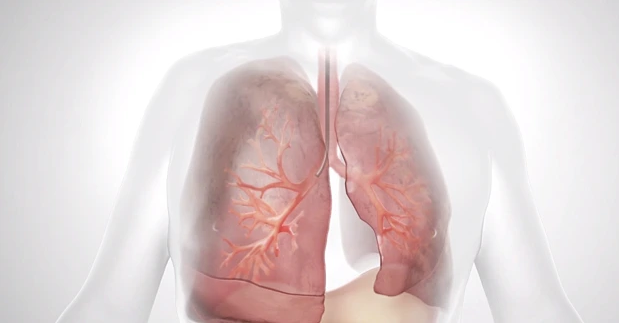 Metro Health - University of Michigan Health Offers Breakthrough Treatment for Emphysema